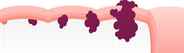 Infographic darmkanker